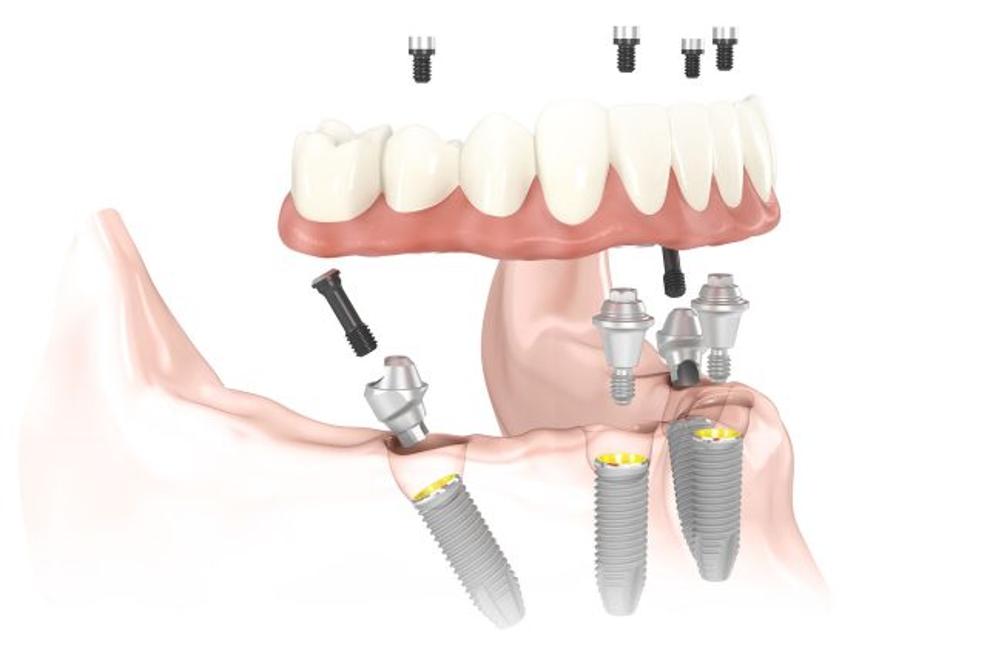 Зубные импланты: виды, стоимость, плюсы и минусы, какие зубные импланты лучше?