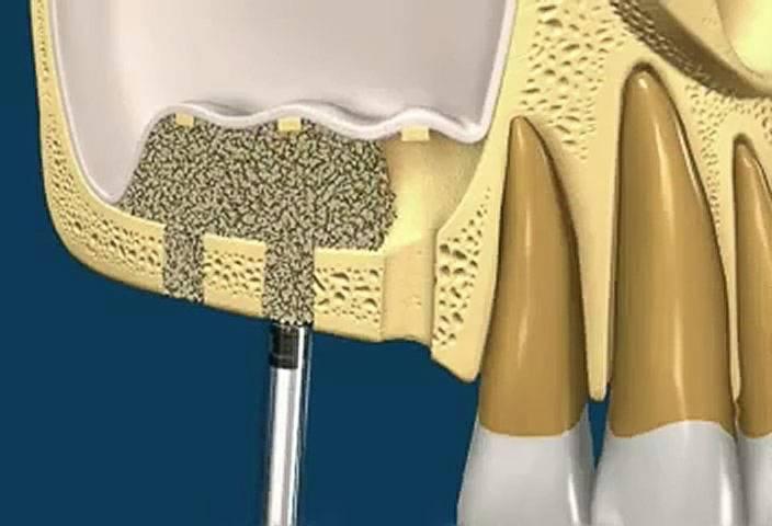 Наращивание костной ткани перед имплантацией зубов: суть процедуры, методы, этапы, стоимость