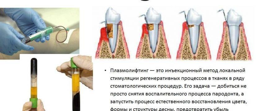 Плазмолифтинг в стоматологии: как, зачем и сколько стоит?