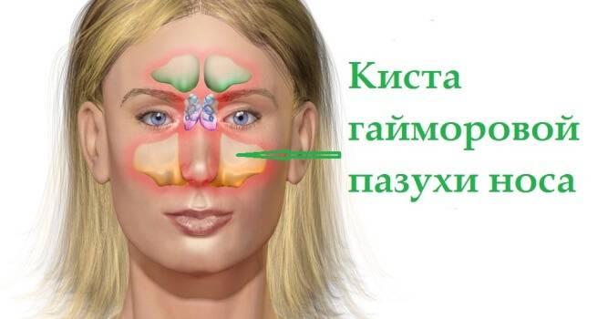 Полипы в гайморовой пазухе: причины, симптомы и лечение