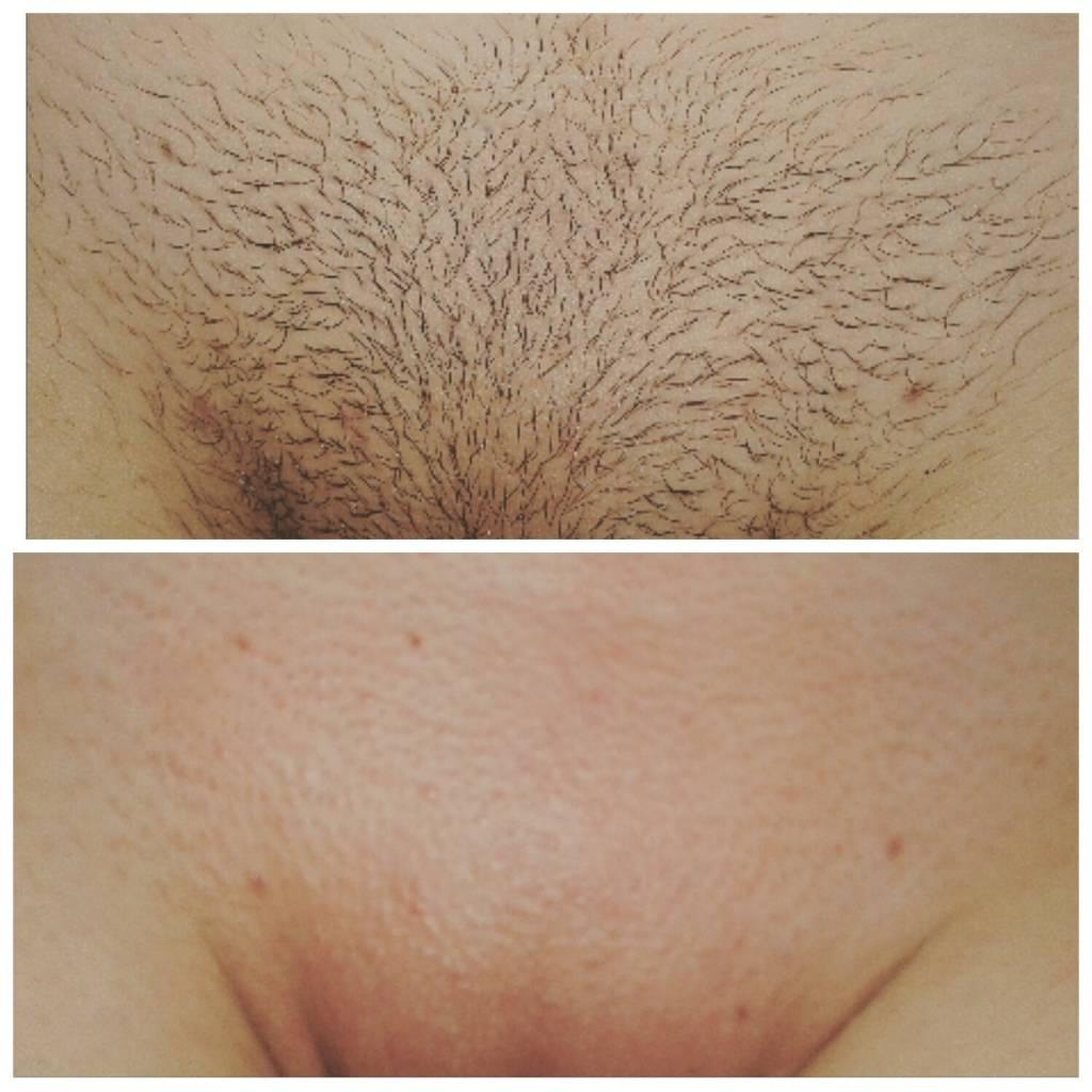 Эпиляция бикини: виды, подготовка, уход за кожей