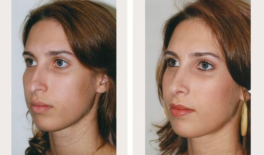 Причины и способы избежать неудачной ринопластики. фото до и после