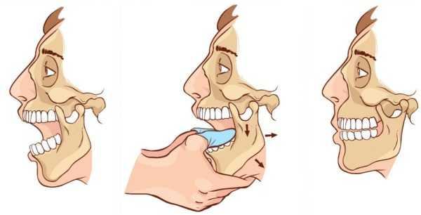 Подвывих челюсти – как распознать и чем лечить?