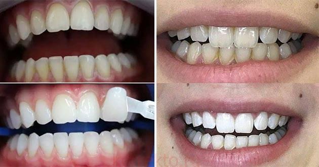 Как сохранить цвет зубов после отбеливания — что можно есть и пить по правилам белой диеты?