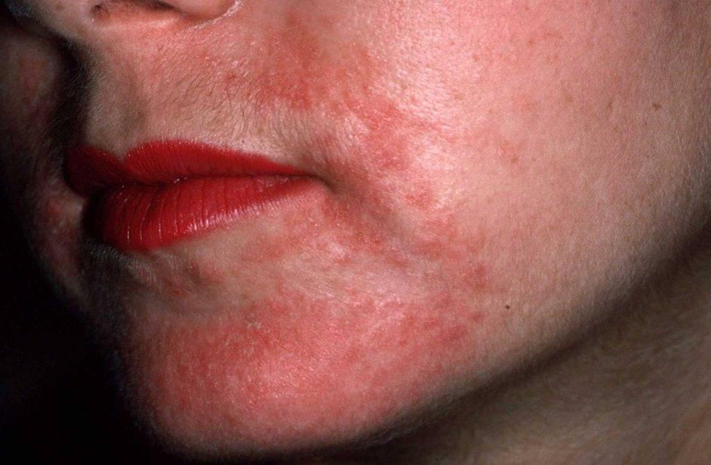 Покраснение в уголках губ у ребенка причины и лечение