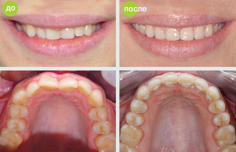 Прикус после выравнивания брекетами — фото до и после: исправление положения клыков, верхних и нижних зубов