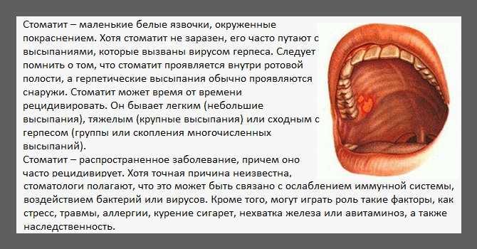 Этиология хронического рецидивирующего афтозного стоматита, лечение у детей и взрослых
