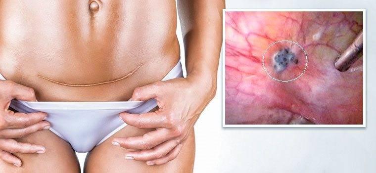 Спайки после кесарева сечения: симптомы, основные причины и лечение