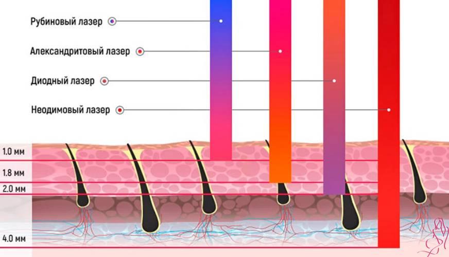 Почему возникают черные точки после лазерной эпиляции?