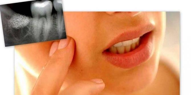 Что делать, если на десне образовался флюс, в том числе после удаления зуба?