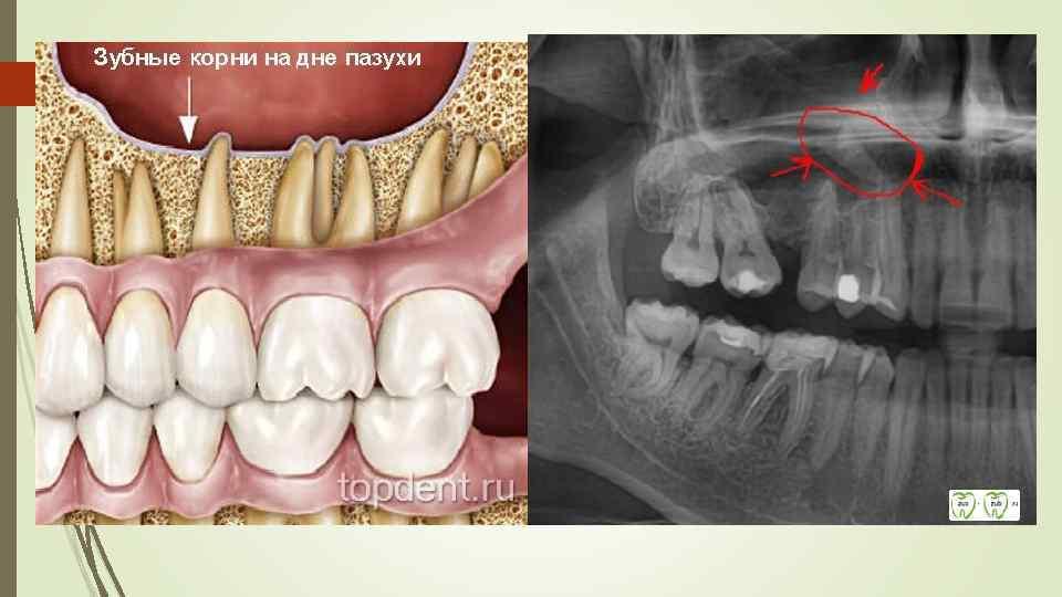 Киста над зубом в гайморовой пазухе: симптомы и лечение одонтогенного гайморита