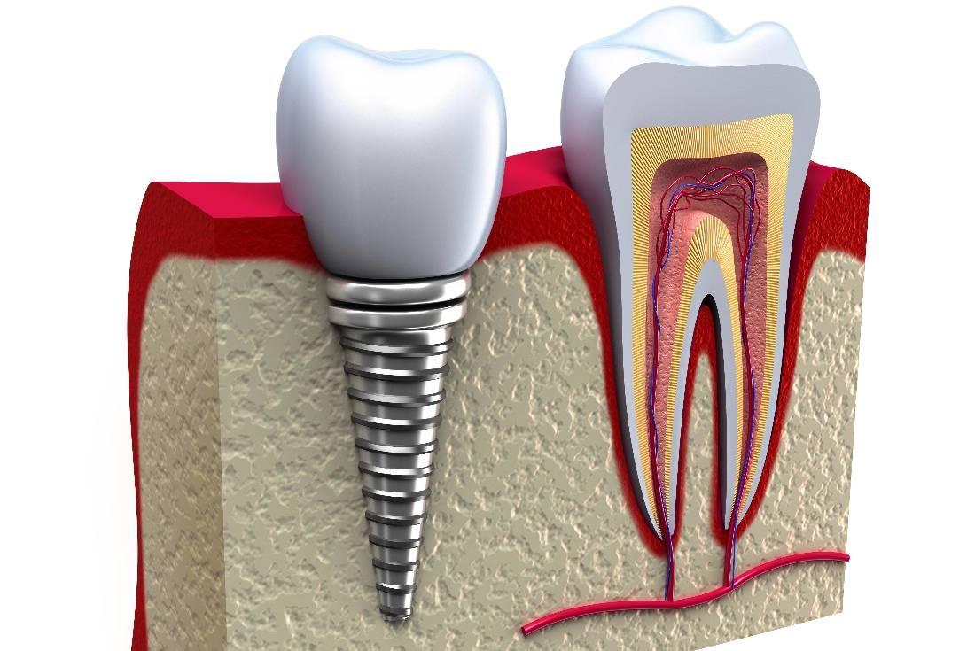 Имплантация зубов срок службы