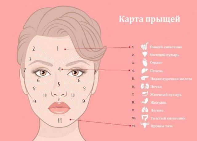 Психосоматика прыщей на лице и теле у женщин: причины