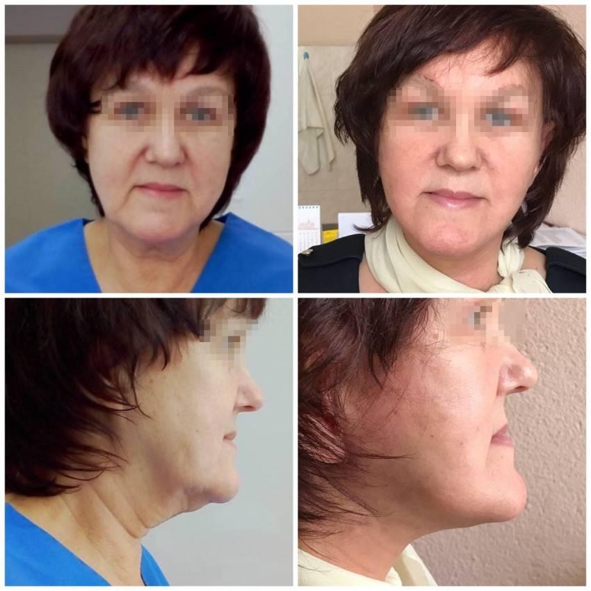 Круговая подтяжка лица – отзывы, стоимость, фото до и после операции