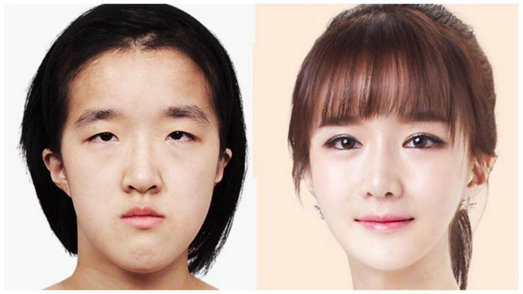 За и против пластической хирургии по увеличению глаз