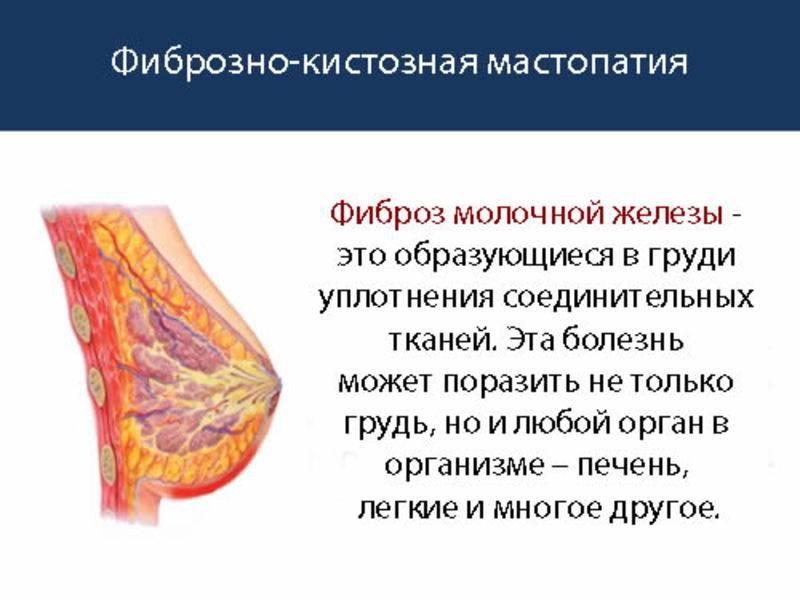 Тяж в молочной железе