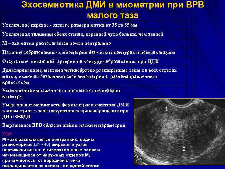 Гипертрофия матки