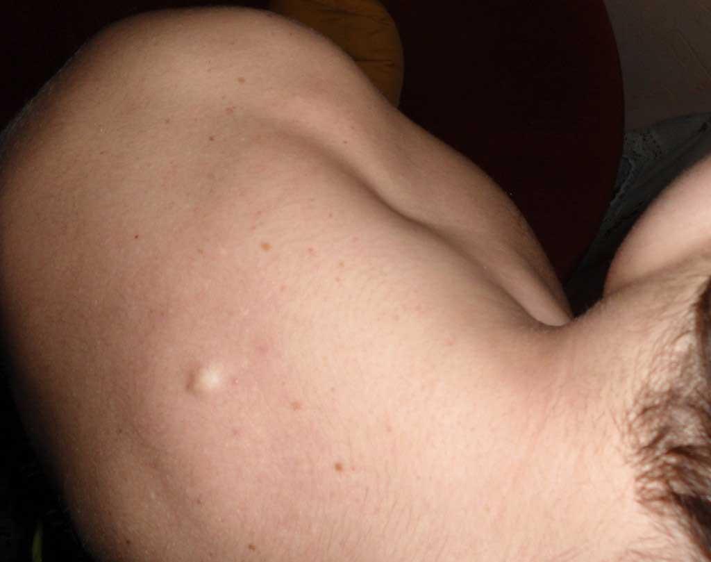 Жировик или липома, что это такое, причины появления, риски и осложнения