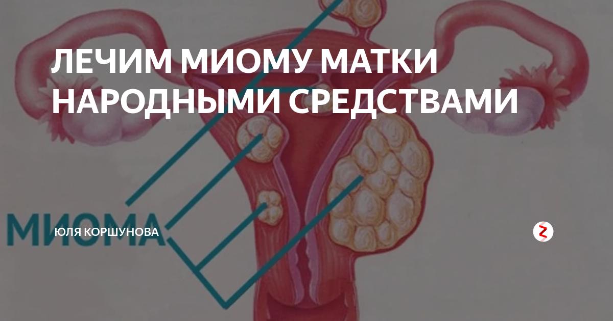 Народные средства в лечении миомы матки