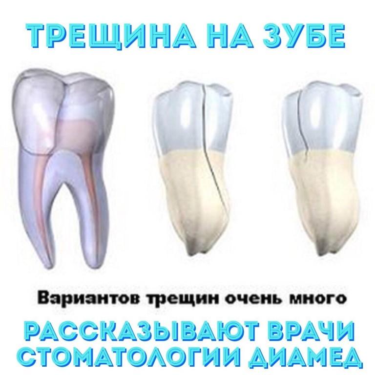 подбор трещина в зубе картинки удивить своих коллег
