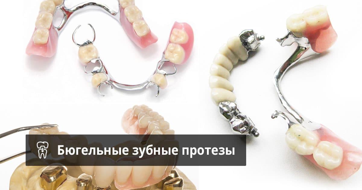 Какой съемный зубной протез на нижнюю челюсть лучше и как за ним ухаживать