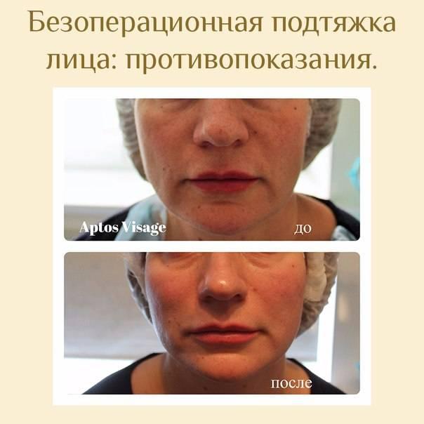 Безоперационная подтяжка лица – виды, отзывы, фото и видео