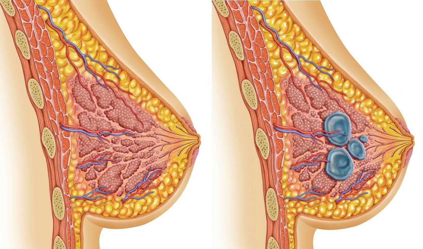 Чем отличается фиброзно кистозная мастопатия от узловой мастопатии