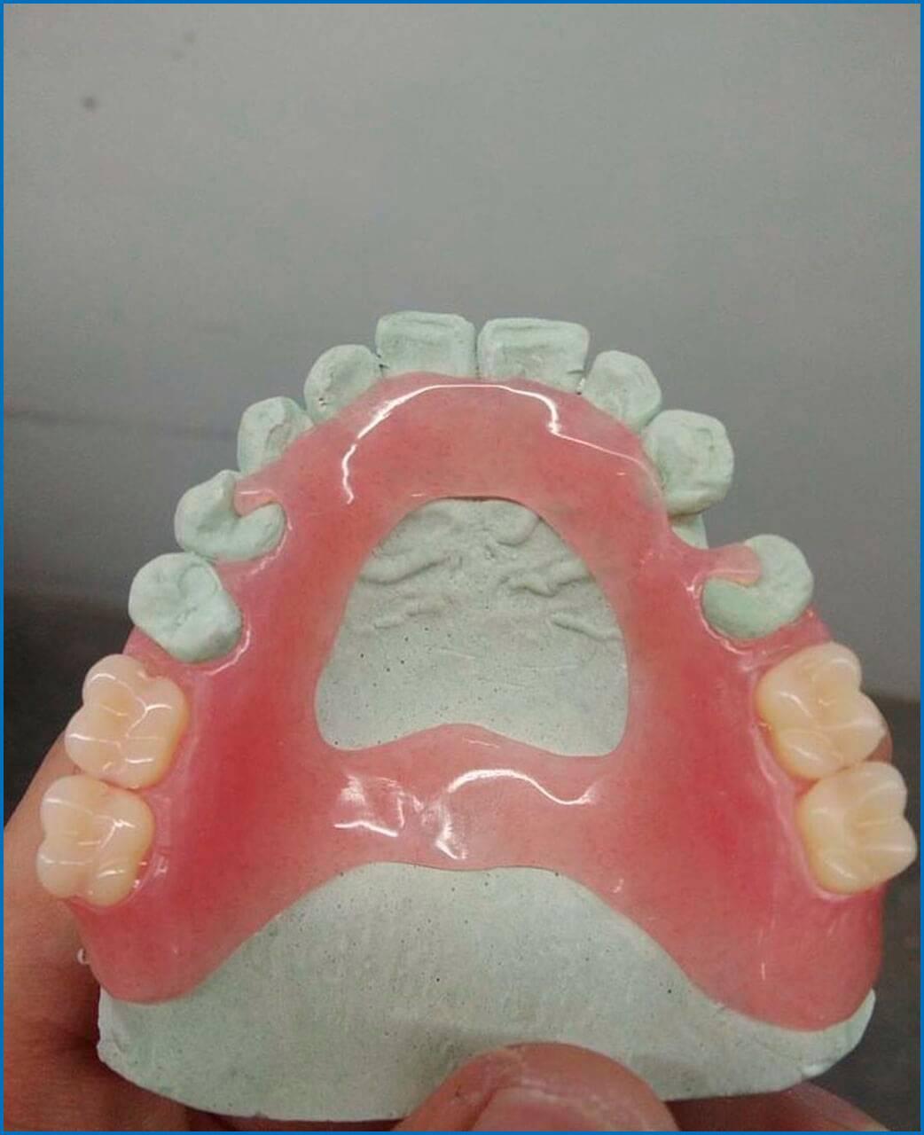 Ацеталовые зубные протезы: их особенности и отзывы пациентов