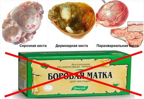 Народные средства от кистозных образований яичников