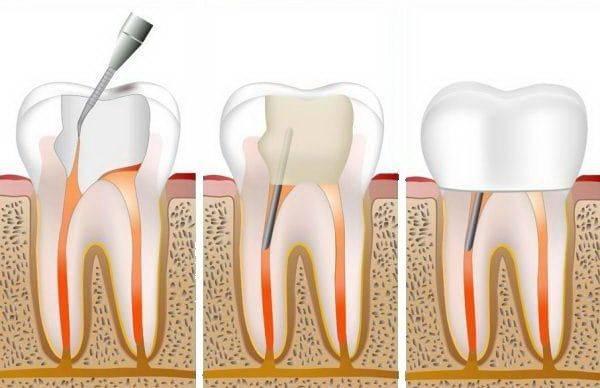 Чем отличается кариес дентина от других видов кариозного поражения зубов