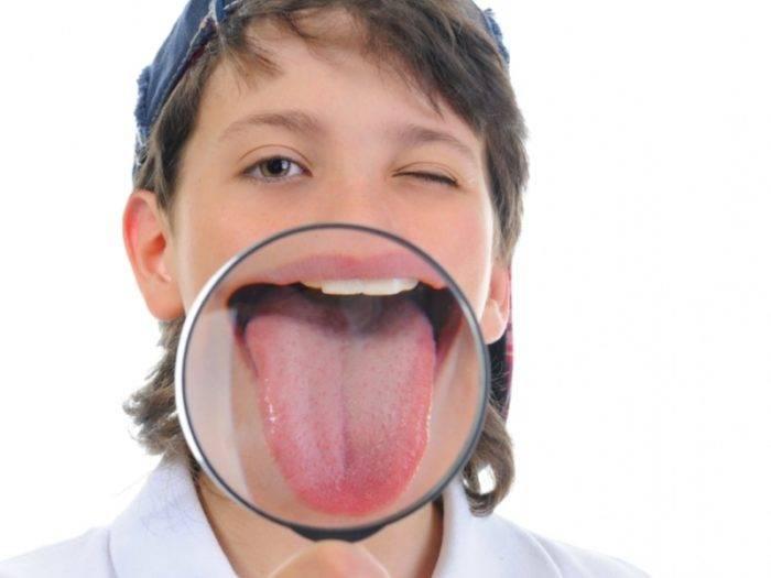 Пятна и налет на языке у детей и грудничков: виды, причины, диагноз и способы лечения