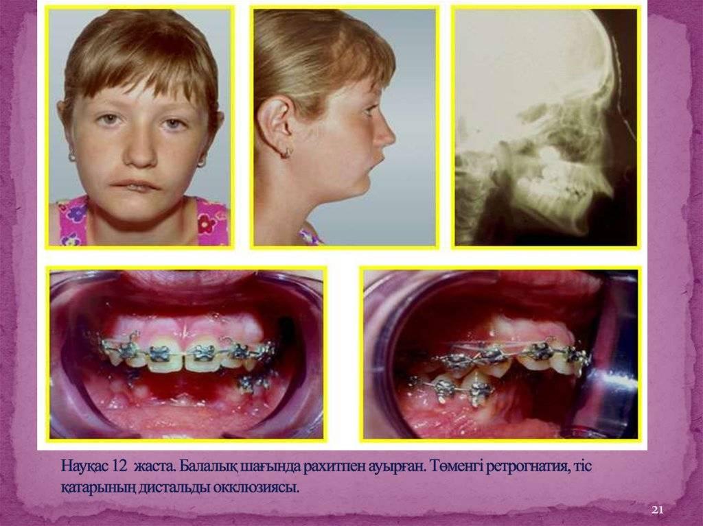 Методы исправления мезиального прикуса: особенности лечения у взрослых и детей, профилактика, фото