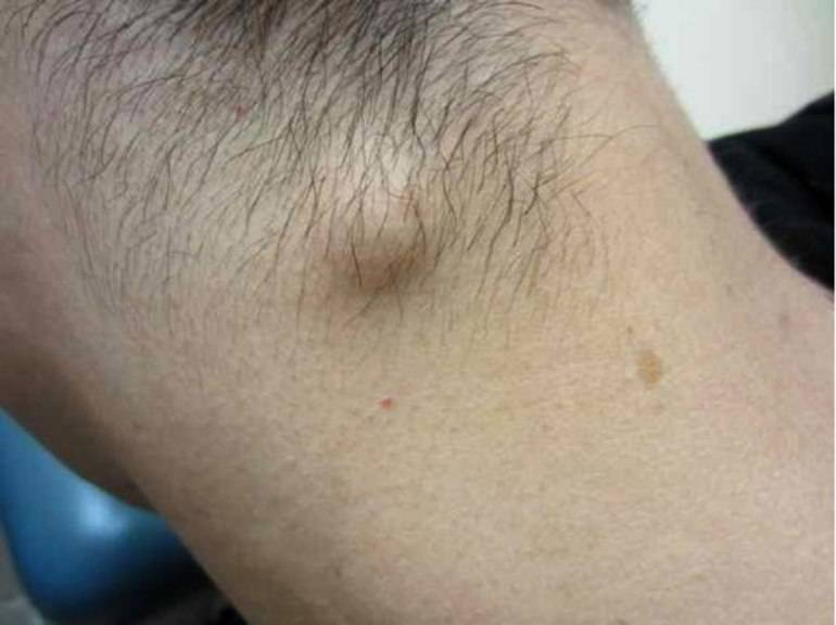 Уплотнение в виде шариков под кожей в паху, под мышкой, на шее, подбородке, щеке, спине. что это, лечение