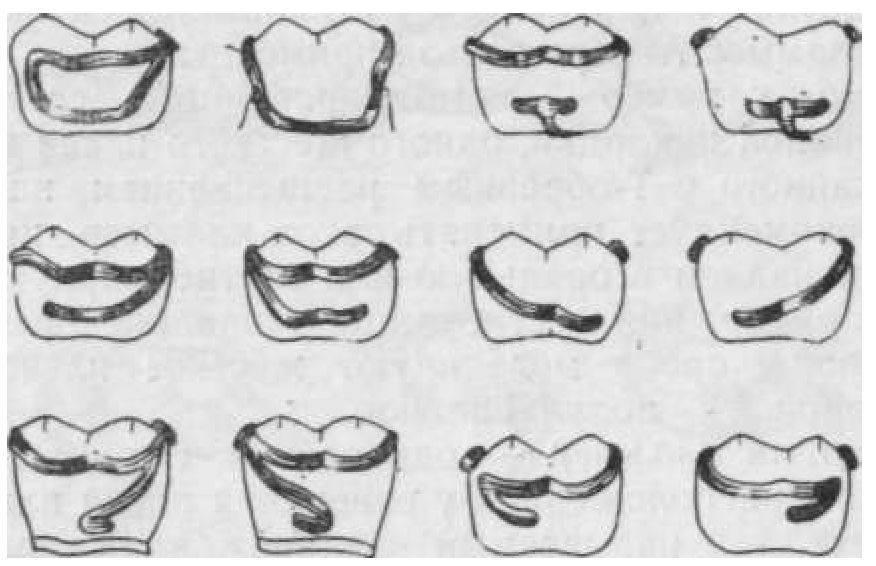 Кламмеры адамса, роуча и других видов: классификация, изготовление и установка