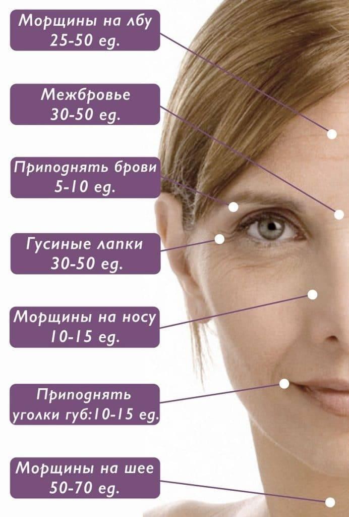 Сколько держится эффект ботокса на лбу и на лице