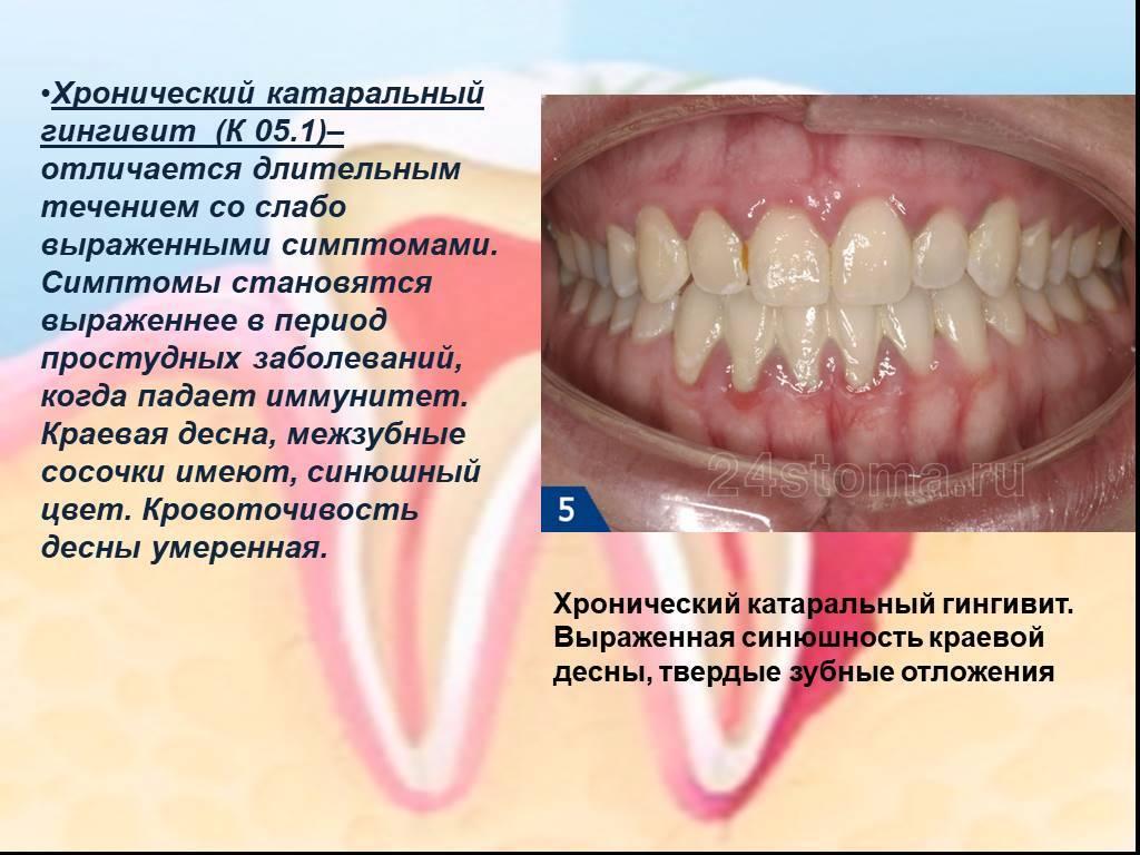 Гингивит: причины, симптомы и лечение у взрослых и детей, классификация, профилактика, осложнения