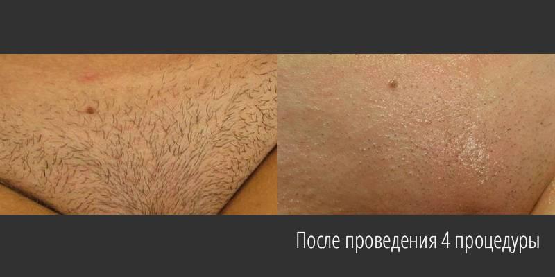 Замедляем рост волос: как разные средства помогут отложить эпиляцию