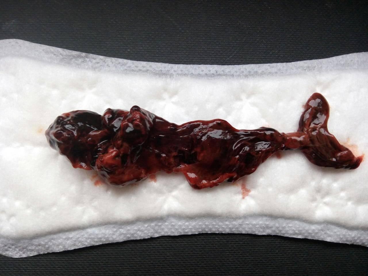 О чем говорит наличие светлой крови при менструации