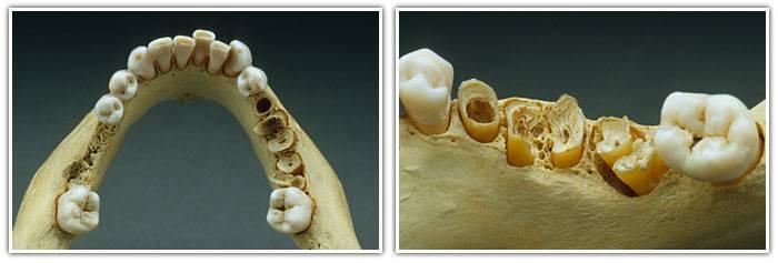 Симптомы остеонекроза челюсти — почему разрежение костной ткани возникает во время лечения онкологии?