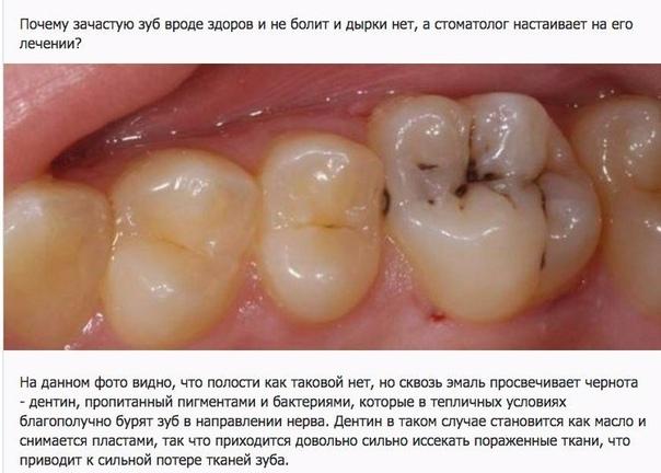 Болит зуб после удаления нерва и пломбирования каналов: почему и что делать