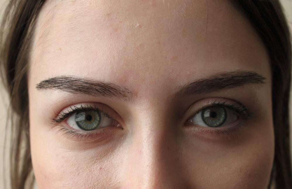 Пересадка бровей: как это делают, эффект до и после