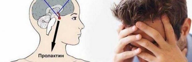 Как понизить уровень пролактина у женщин