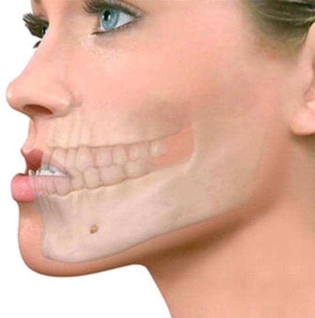 Подвывих челюсти: симптомы и лечение. чем он отличается от вывиха?