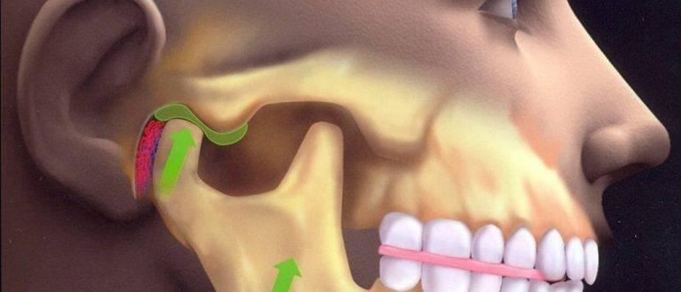 Симптомы воспаления челюстно-лицевого сустава и способы лечения артрита внчс