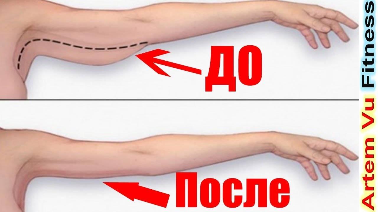 Отвечаем на вопрос: как подтянуть обвисшую кожу на руках с помощью 5 лучших упражнений для женщин