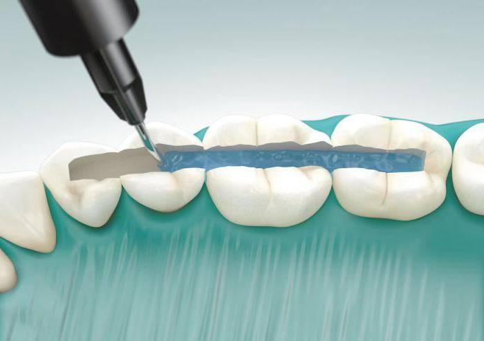 Шинирование подвижных зубов: особенности процедуры, виды используемых материалов