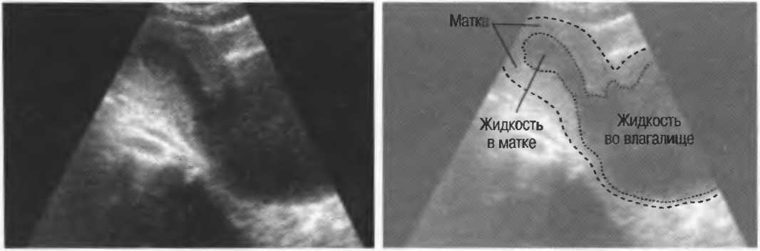 Что может означать жидкость за маткой, обнаруженная на узи?