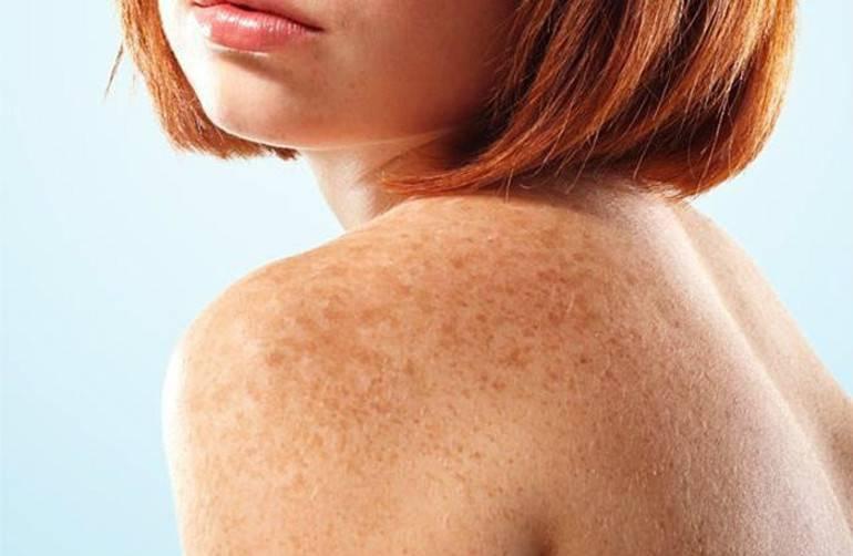 Пигментные пятна на теле – что это и причины их появления