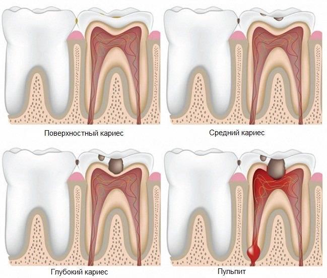 Боль в зубах при надавливании