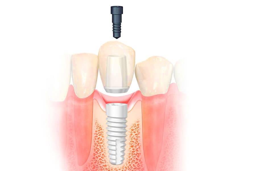 Пластика десны после проведения имплантации зубов